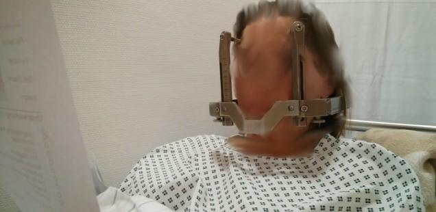 Gamma Knife Bestrahlung des Angioms mit stereotaktischem Rahmen